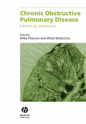 Chronic Obstructive Pulmonary Disease by Jadwiga A. Wedzicha