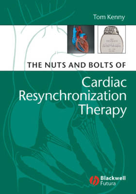 Nuts and Bolts of Cardiac Resynchronization Therapy book