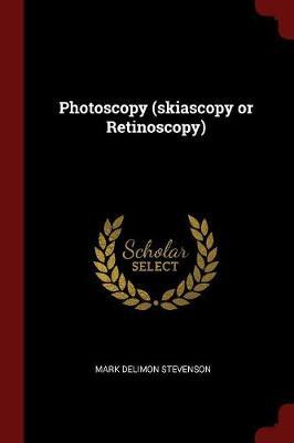 Photoscopy (Skiascopy or Retinoscopy) by Mark Delimon Stevenson