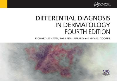 Differential Diagnosis in Dermatology, 4th Edition by Richard Ashton