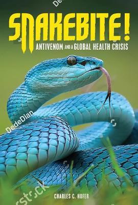 Snakebite! by Charles C Hofer