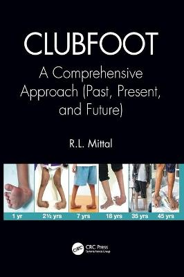 Clubfoot: A Comprehensive Approach (Past, Present, and Future) book