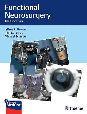Functional Neurosurgery: The Essentials by Jeffrey A. Brown