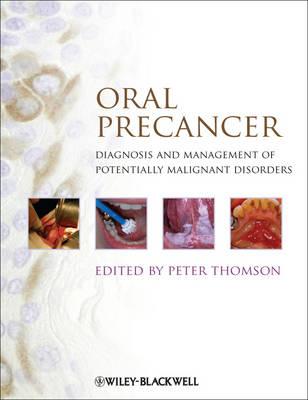 Oral Precancer by Peter Thomson