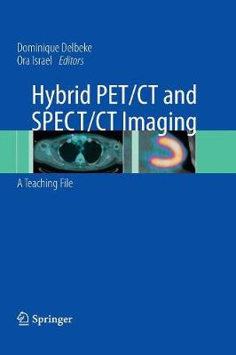 Hybrid PET/CT and SPECT/CT Imaging by Dominique Delbeke