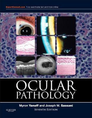 Ocular Pathology by Myron Yanoff