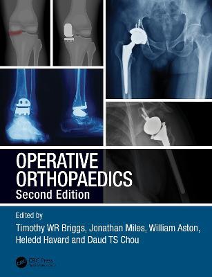 Operative Orthopaedics by Timothy WR Briggs