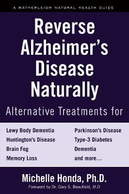 Reverse Alzheimer's Disease Naturally: Alternative Treatments for Dementia including Alzheimer's Disease by Michelle Honda