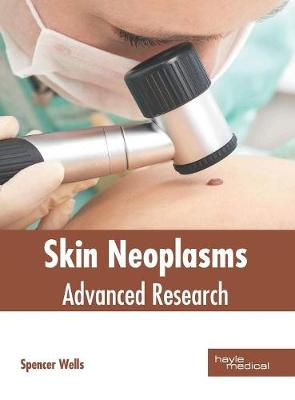 Skin Neoplasms: Advanced Research by Spencer Wells