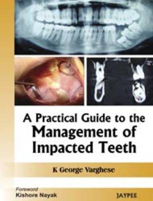 Practical Guide to the Management of Impacted Teeth by George Varghese