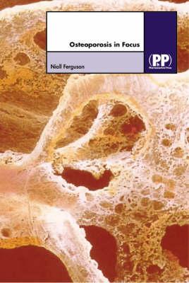 Osteoporosis in Focus by Niall Ferguson