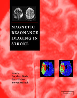 Magnetic Resonance Imaging in Stroke book