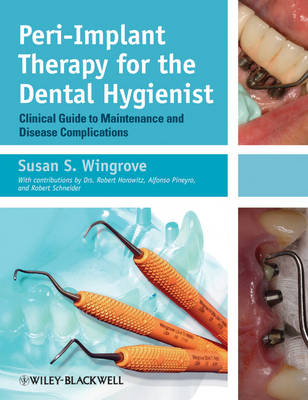Peri-Implant Therapy for the Dental Hygienist by Susan S. Wingrove