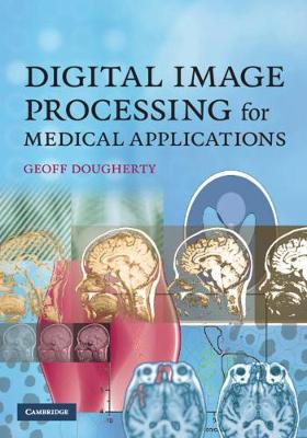 Digital Image Processing for Medical Applications by Geoff Dougherty