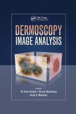 Dermoscopy Image Analysis by M. Emre Celebi