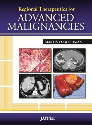 Regional Therapeutics for Advanced Malignancies by Martin Goodman