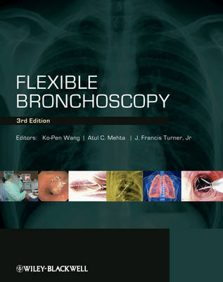 Flexible Bronchoscopy by KoPen Wang
