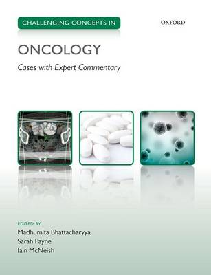 Challenging Concepts in Oncology book