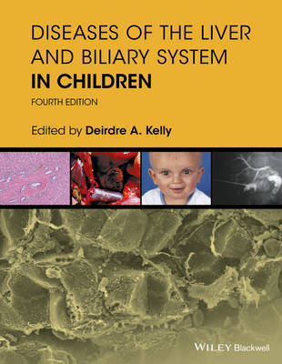 Diseases of the Liver & Biliary System in Children  4e by Deirdre A. Kelly