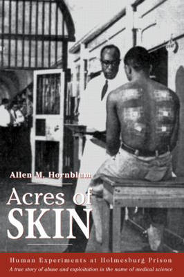 Acres of Skin book