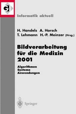 Bildverarbeitung Fur Die Medizin 2001: Algorithmen -- Systeme -- Anwendungen by Heinz Handels