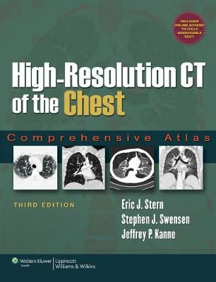 High-Resolution CT of the Chest by Eric Stern