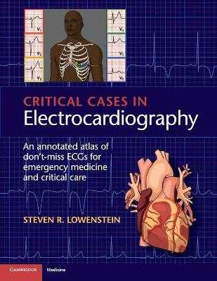 Critical Cases in Electrocardiography by Steven R. Lowenstein