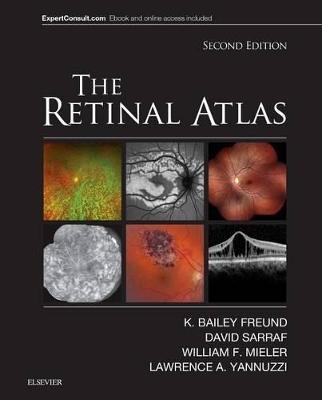 Retinal Atlas book