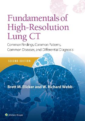 Fundamentals of High-Resolution Lung CT: Common Findings, Common Patterns, Common Diseases and Differential Diagnosis by Brett M Elicker