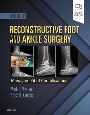 Reconstructive Foot and Ankle Surgery: Management of Complications book