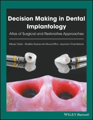 Decision Making in Dental Implantology by Mauro Tosta