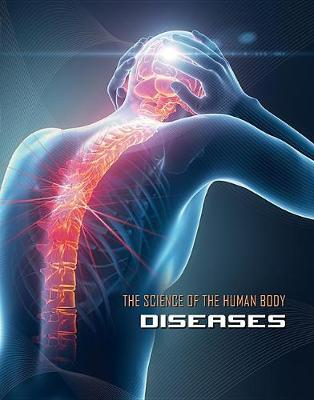 Science of the Human Body: Diseases by James Shoals