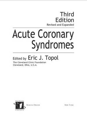 Acute Coronary Syndromes by Eric Topol