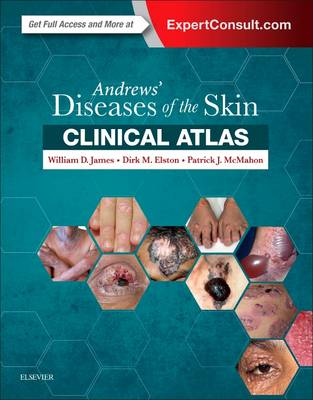 Andrews' Diseases of the Skin Clinical Atlas by William D. James