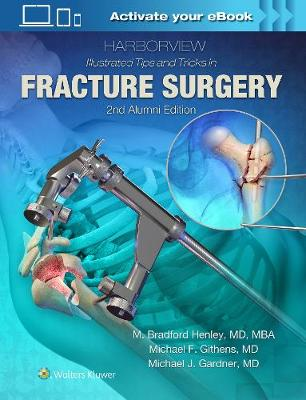 Harborview Illustrated Tips and Tricks in Fracture Surgery by M. Henley