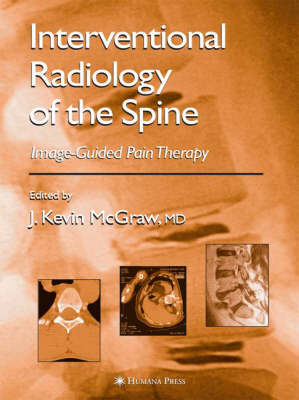 Interventional Radiology of the Spine by J. Kevin McGraw