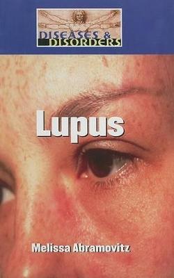 Lupus by Melissa Abramovitz